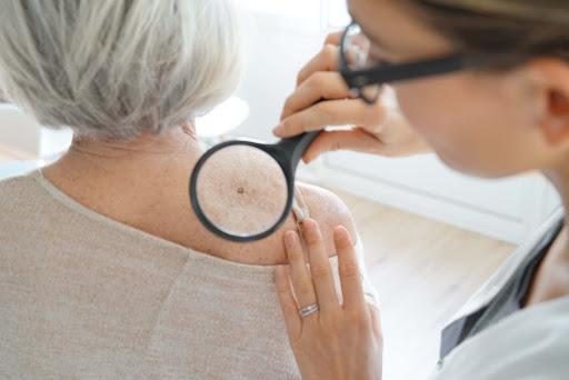Understanding Different Types of Skin Cancer