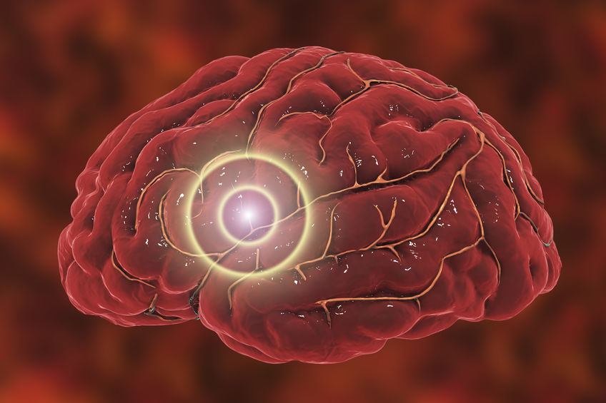 Signs of a Stroke and What to Do Next